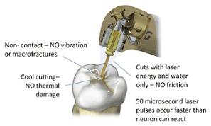 Waterlase Dental Treatment