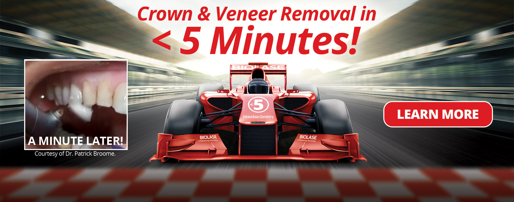 Crown & Veneer Removal in Less Than 5 Minutes!