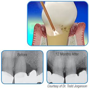 Periodontics in Action: REPAIR Perio Laser Protocol