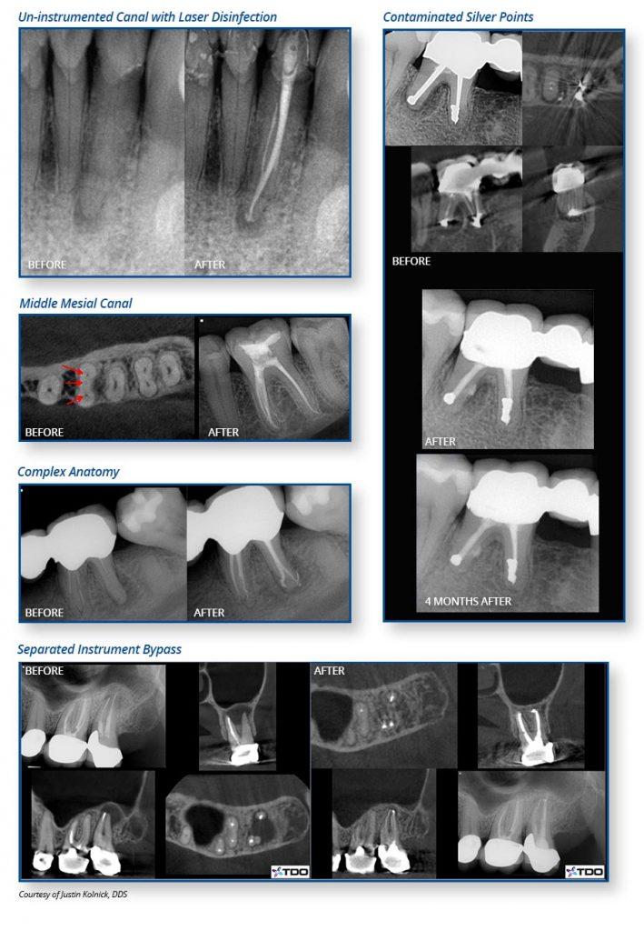Waterlase Endodontics - Courtesy of Justin Kolnick, DDS
