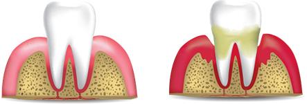 Non-Surgical Perio