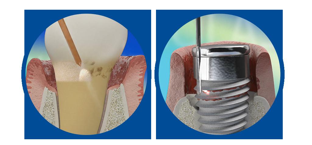 Waterlase REPAIR Perio and REPAIR Implant