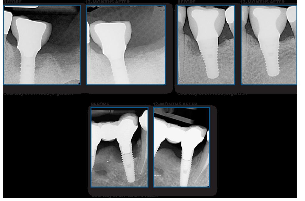 REPAIR Implant