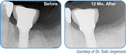 REPAIR Implant - Courtesy of Dr. Todd Jorgenson