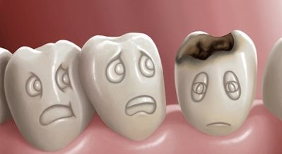 Cavity Tooth Decay Ancient Dentistry