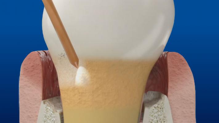 Waterlase Periodontal Treatment