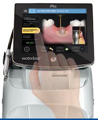 Waterlase iPlus